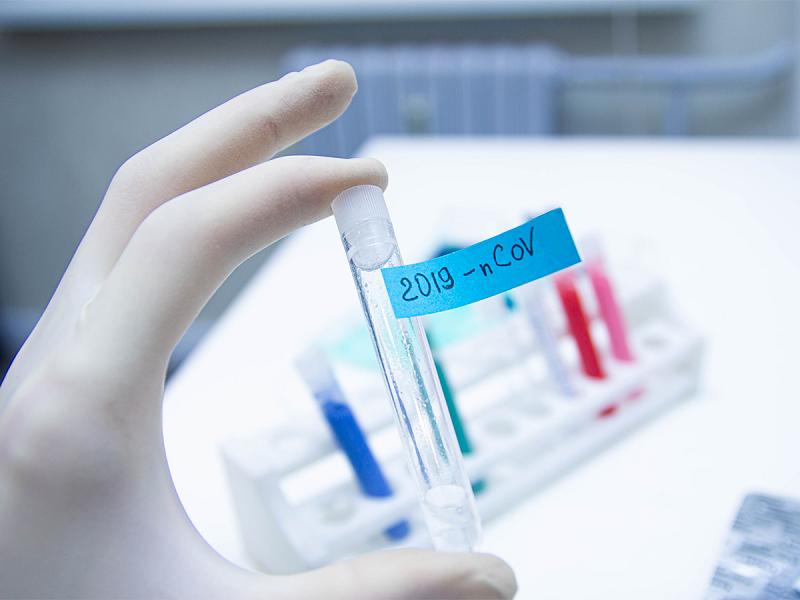 coronavirus-diagnostic-test