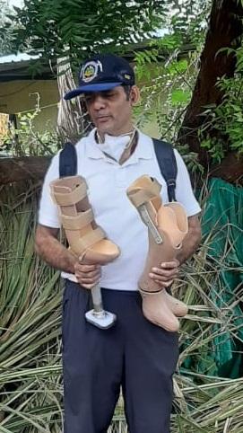 Salil Jain with Prosthetic
